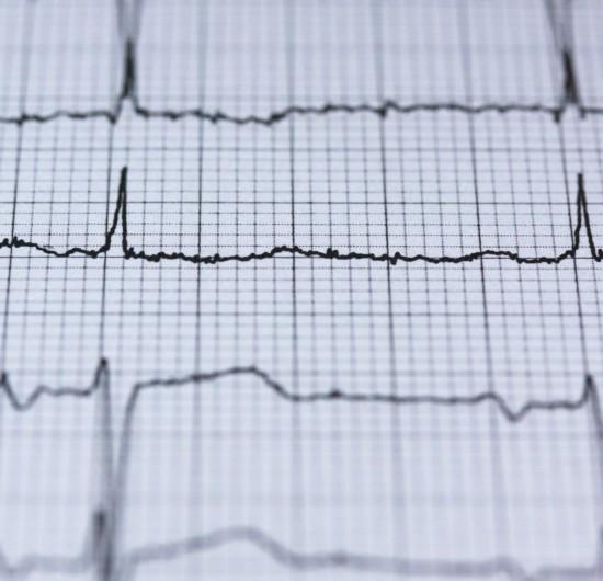 Pourquoi La Fibrillation Atriale Augmente-t-elle Le Risque